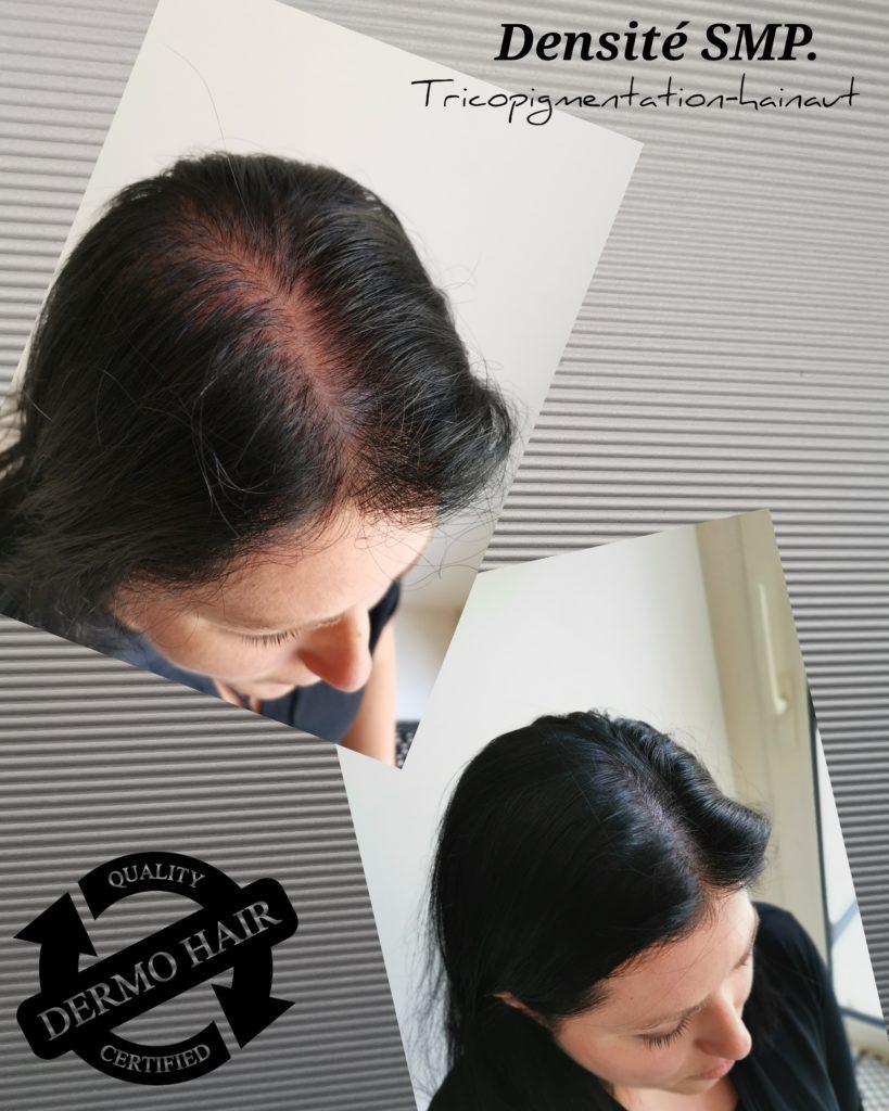 Effet densité de tricopigmentation pour femmes