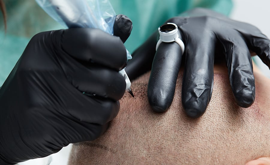 Qu'est-ce que la tricopigmentation et la micropigmentation capillaire ?