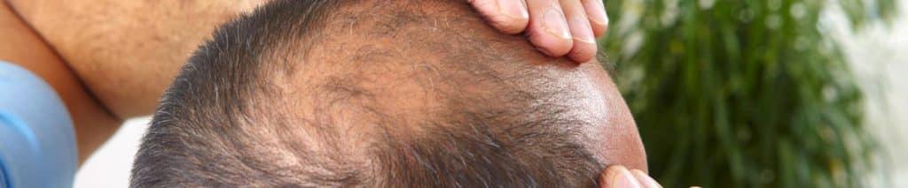 Camoufler la perte de cheveux