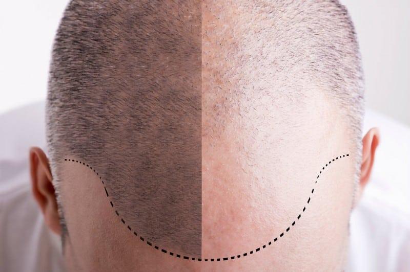 Les pigments bio-résorbables ou définitifs pour la tricopigmentation ou SMP ?