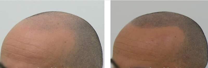 tricopigmentation effet rasé