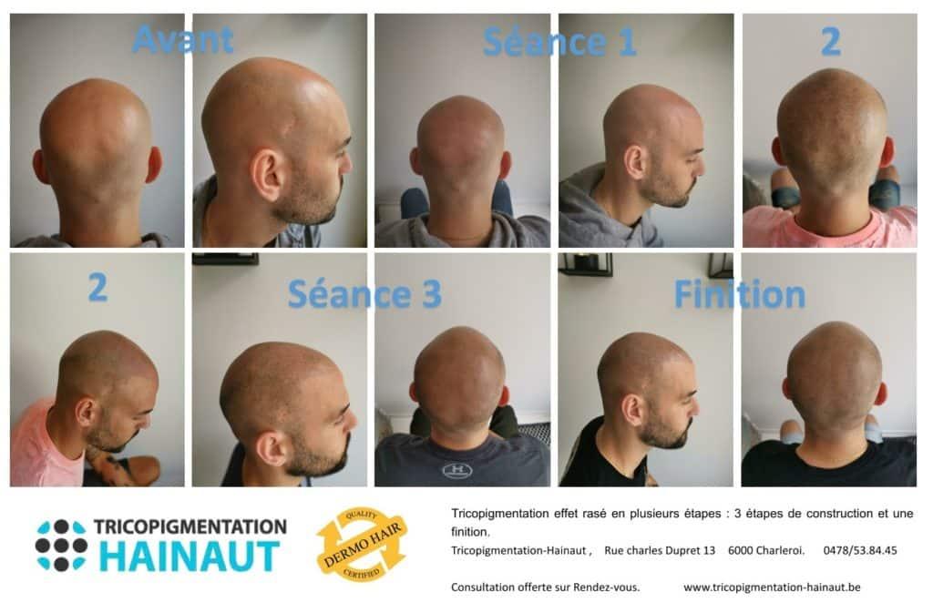 Les différents effets de tricopigmentation