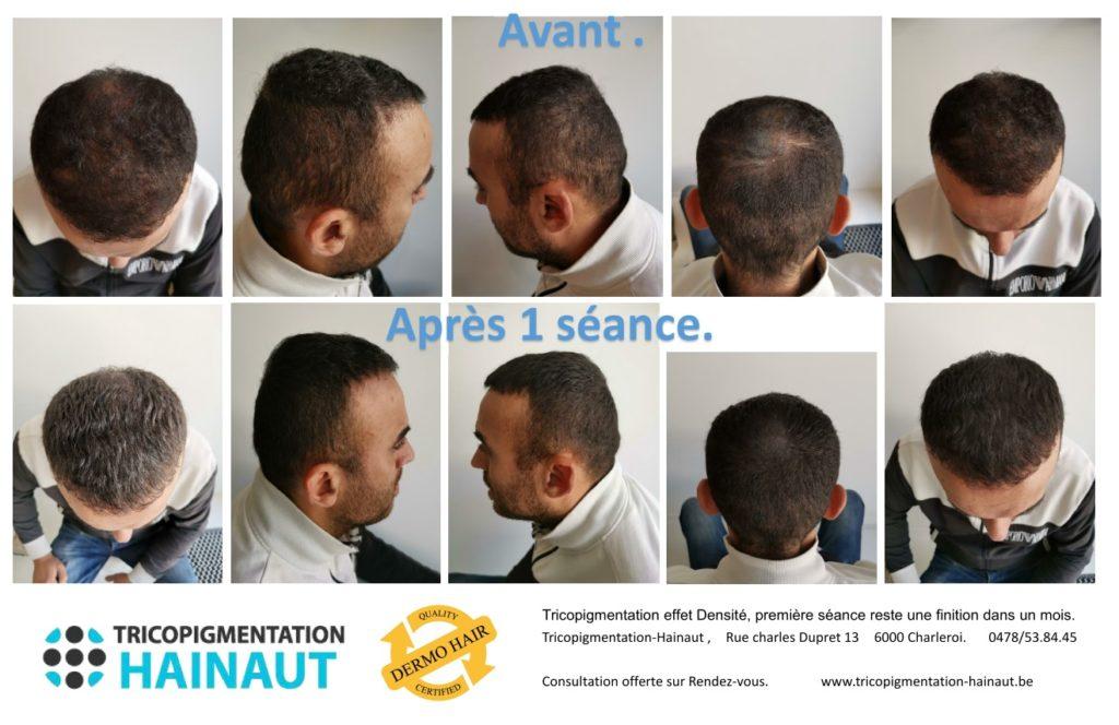 Les différents effets de tricopigmentation : rasé ou densité