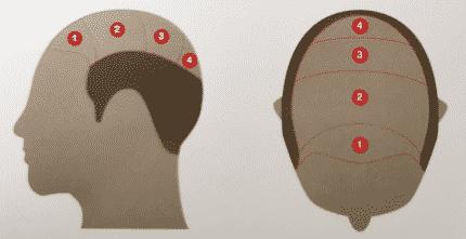 Tricopigmentation ou micropigmentation à Namur et à Charleroi